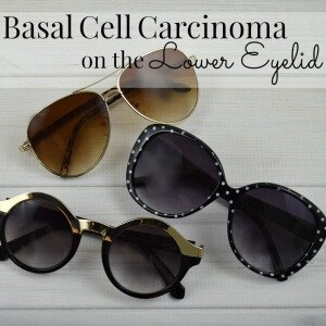 My experience and what I learned from basal cell carcinoma on the lower eyelid and oculoplasty reconstructive surgery.