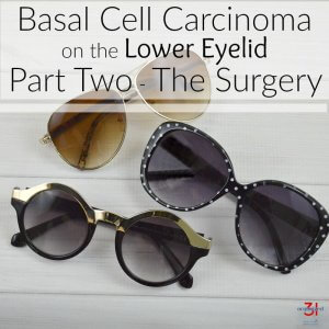 Basal Cell Carcinoma on Lower Eyelid Surgery and Recovery