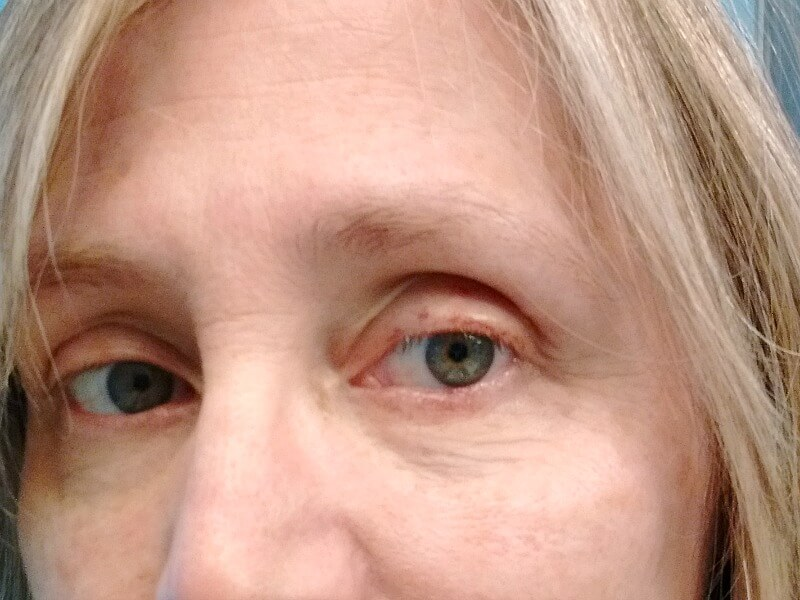 My experience and what I learned from basal cell carcinoma on the lower eyelid - the surgery and oculoplasty reconstructive surgery. The surgery and recovery.
